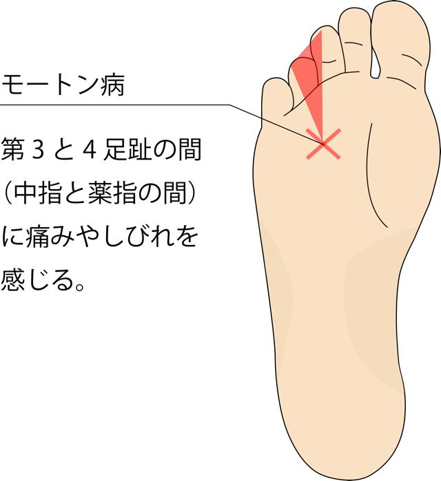 が 親指 足 付け根 痛い の の 裏