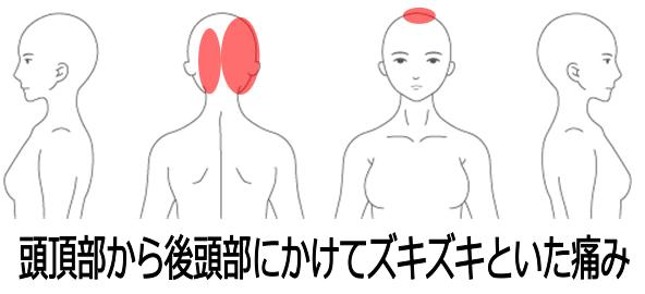 頭 痛い の 右 が 右の頭が痛いズキズキ痛いのは水毒症かも?原因や対処方法、偏頭痛との違い